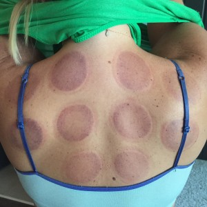 Cupping: the day after